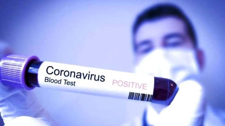 Update Corona 27 Maret: 1.046 Kasus, 87 Meninggal, 46 Sembuh